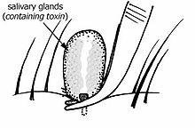 Usuwanie kleszcza przy użyciu pęsety